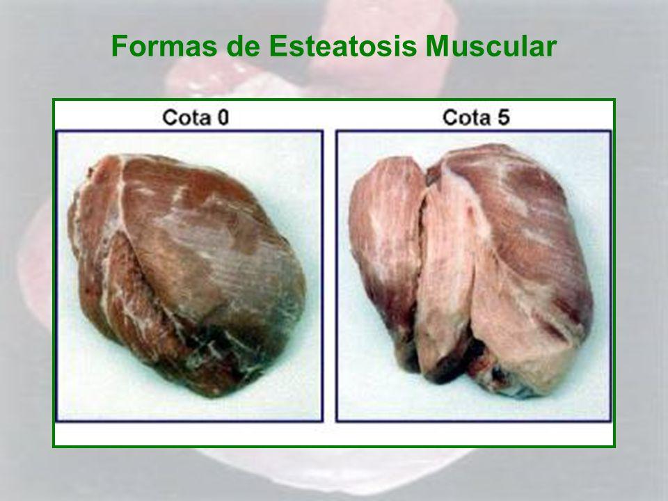 Formas de Esteatosis Muscular