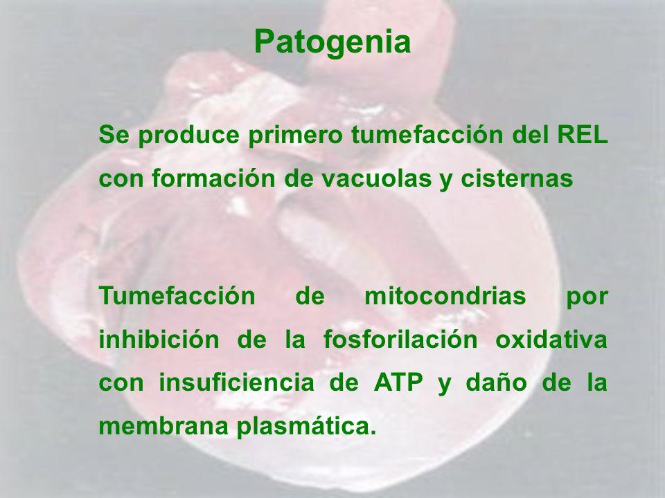 Patogenia Se produce primero tumefacción del REL con formación de vacuolas y cisternas.