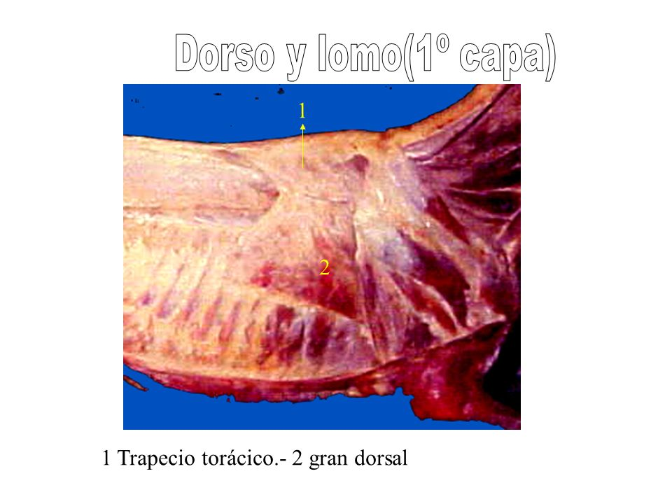 Dorso y lomo(1º capa) 1 2 1 Trapecio torácico.- 2 gran dorsal