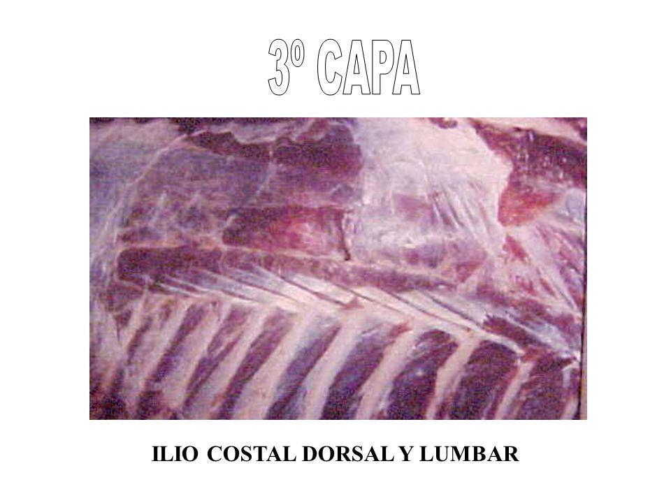 3º CAPA ILIO COSTAL DORSAL Y LUMBAR