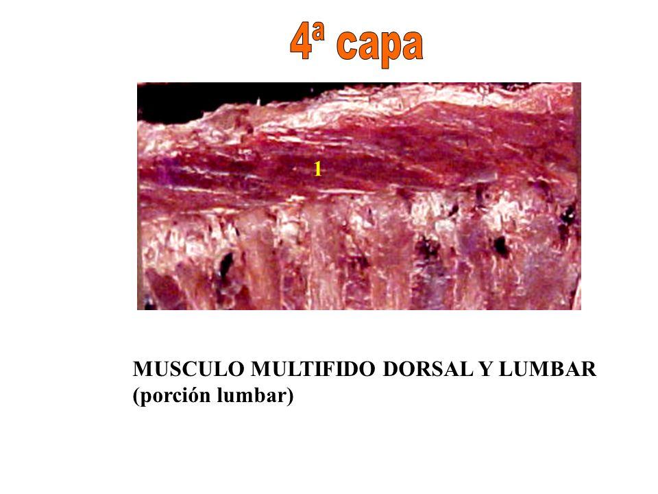 4ª capa 1 MUSCULO MULTIFIDO DORSAL Y LUMBAR (porción lumbar)