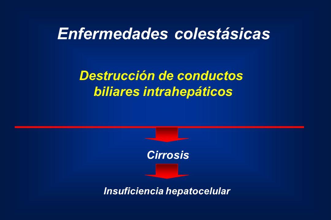 Destrucción de conductos biliares intrahepáticos