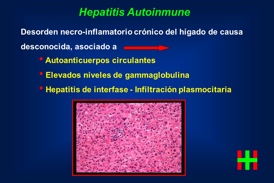 Hepatitis Autoinmune Desorden necro-inflamatorio crónico del hígado de causa. desconocida, asociado a.
