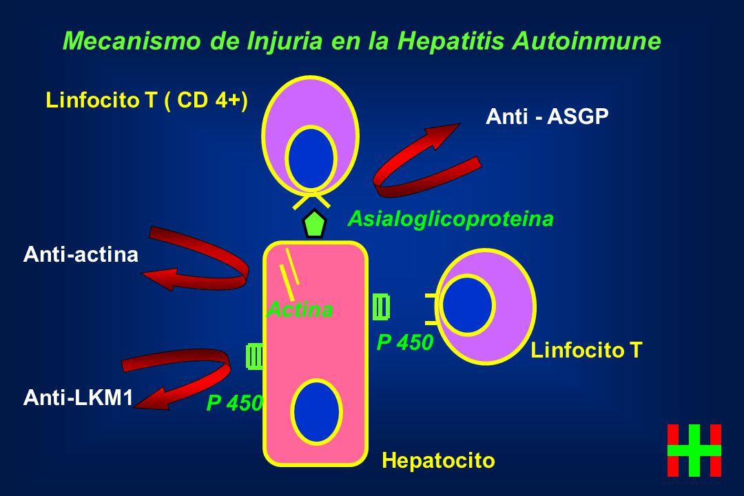 Mecanismo de Injuria en la Hepatitis Autoinmune