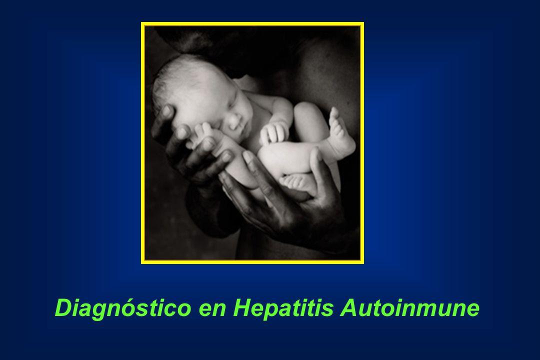 Diagnóstico en Hepatitis Autoinmune