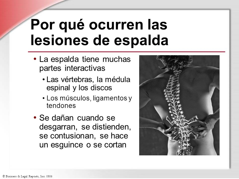 Por qué ocurren las lesiones de espalda