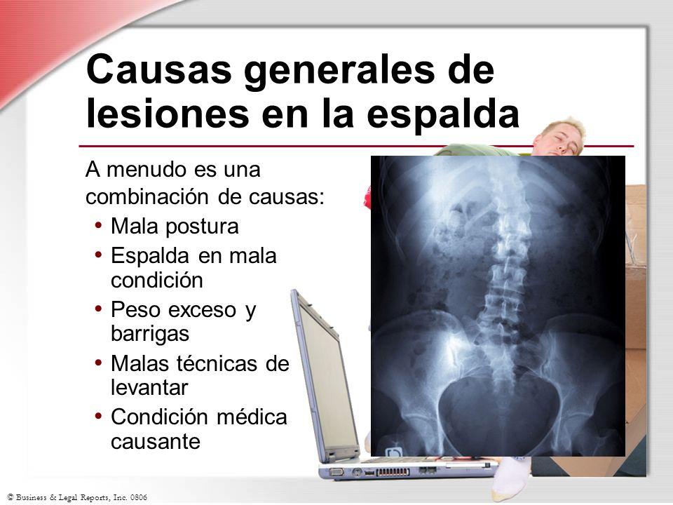 Causas generales de lesiones en la espalda