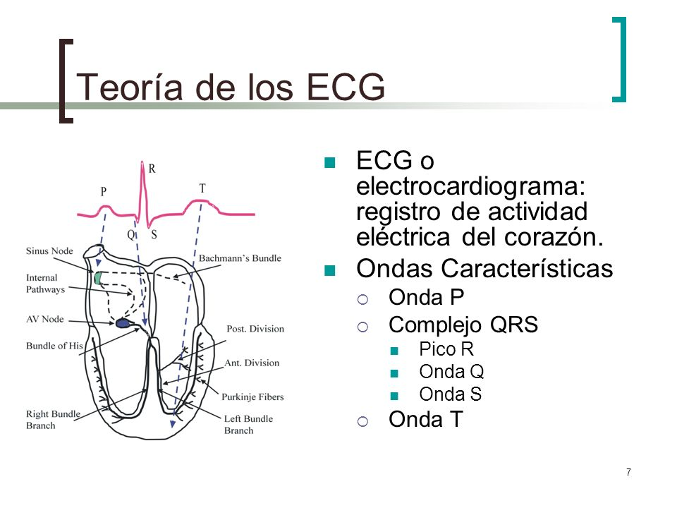 Teoría de los ECG ECG o electrocardiograma: registro de actividad eléctrica del corazón. Ondas Características.