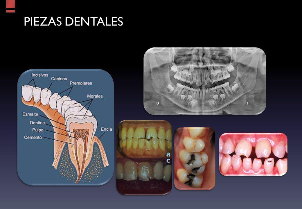 PIEZAS dentales