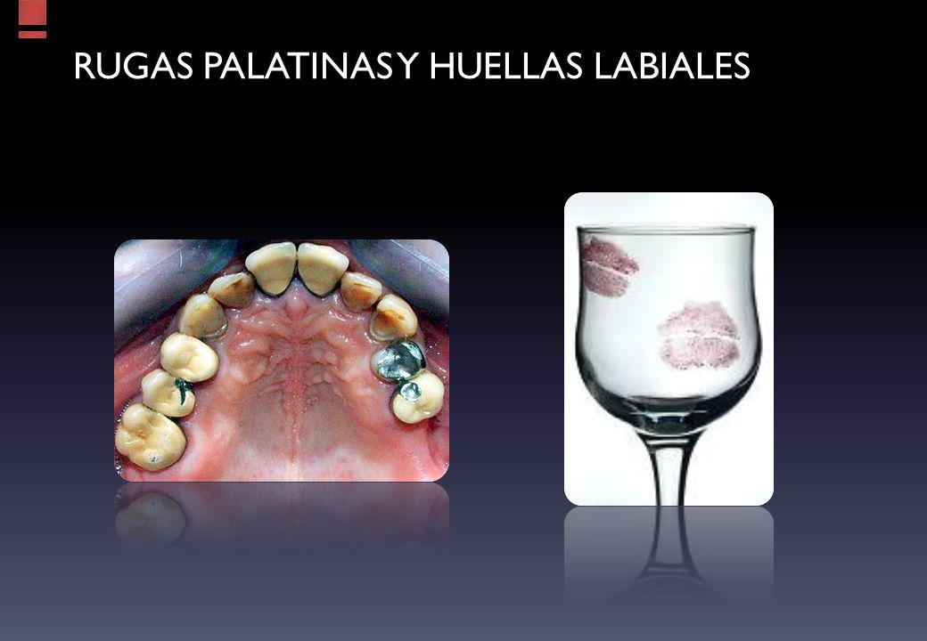 Rugas palatinas y huellas labiales