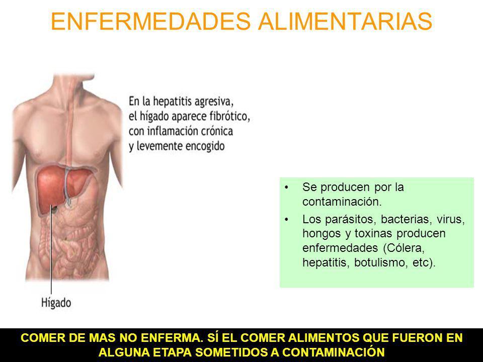 ENFERMEDADES ALIMENTARIAS