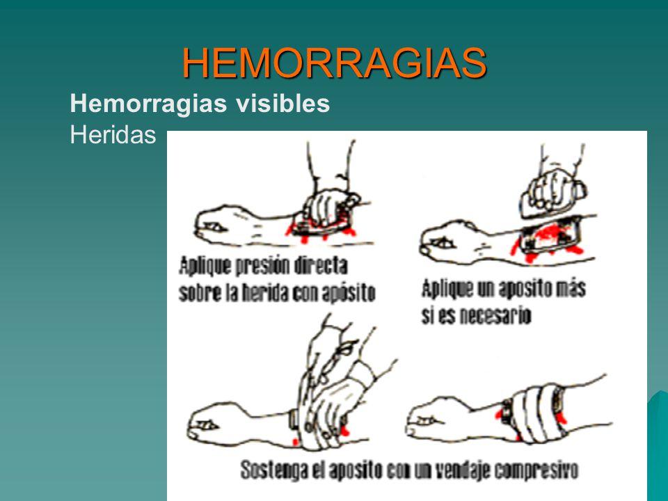 HEMORRAGIAS Hemorragias visibles Heridas