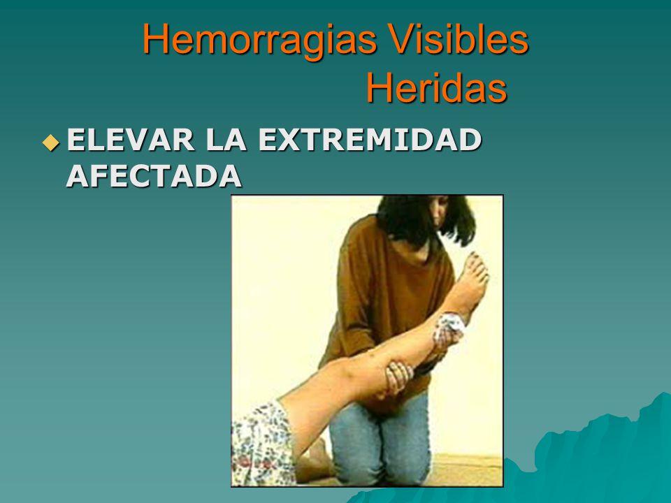 Hemorragias Visibles Heridas