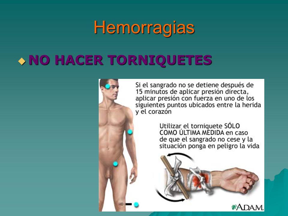 Hemorragias NO HACER TORNIQUETES