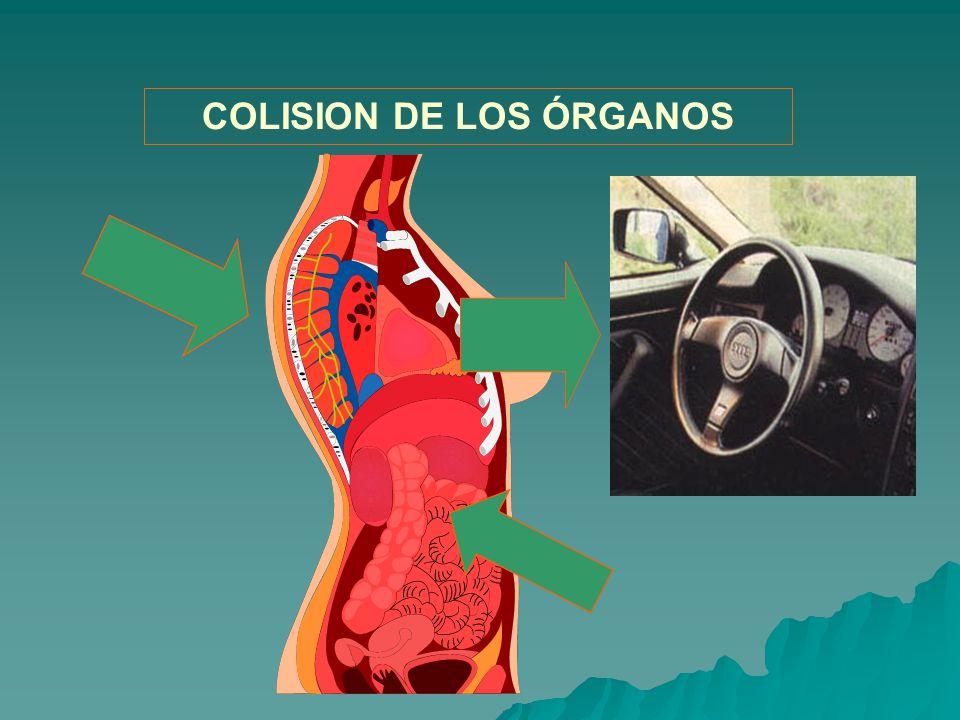 COLISION DE LOS ÓRGANOS