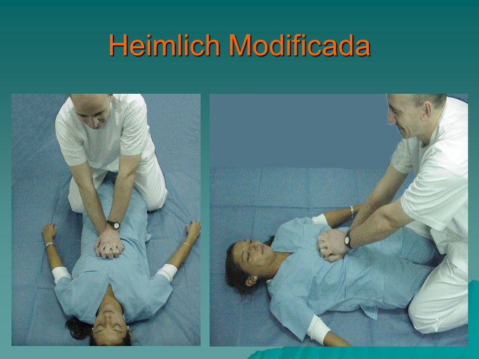 Heimlich Modificada