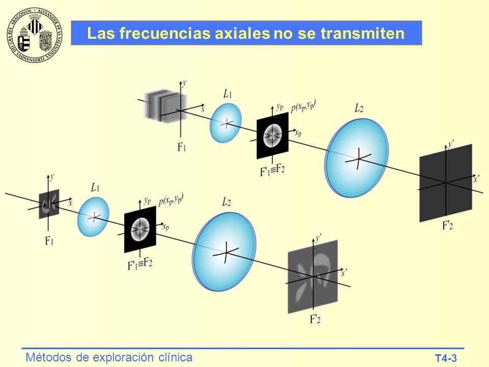 Las frecuencias axiales no se transmiten