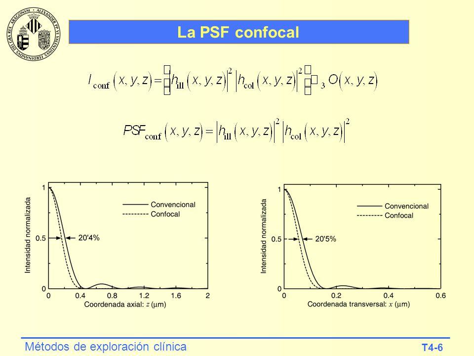 La PSF confocal
