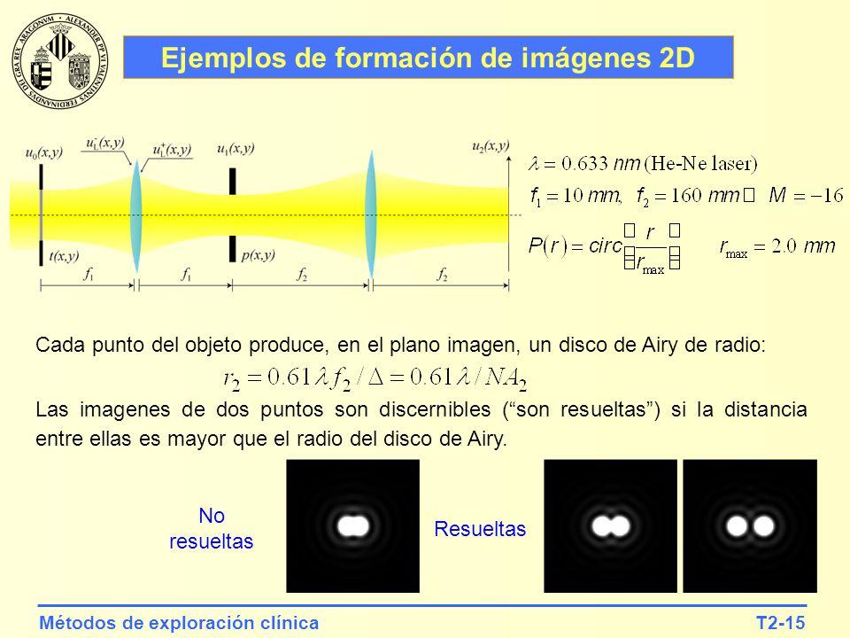 Ejemplos de formación de imágenes 2D