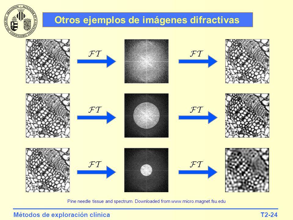 Otros ejemplos de imágenes difractivas