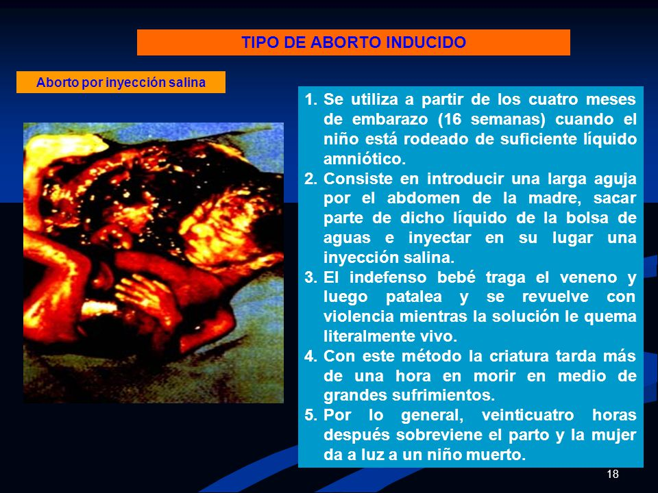 TIPO DE ABORTO INDUCIDO Aborto por inyección salina