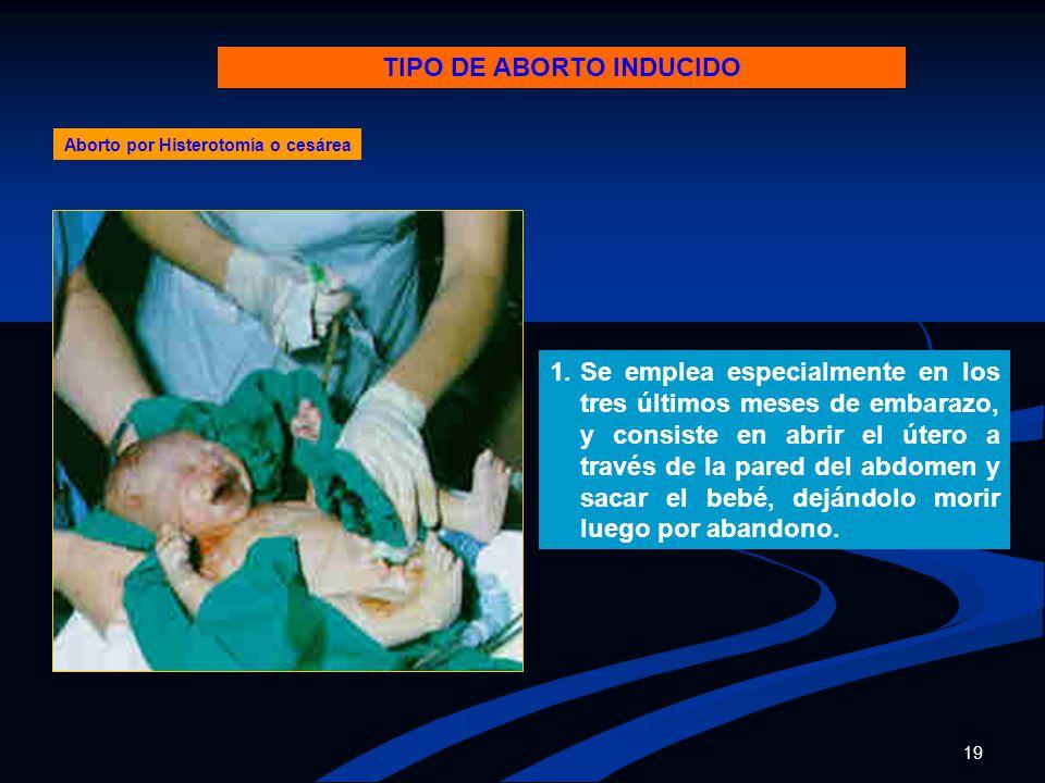 TIPO DE ABORTO INDUCIDO