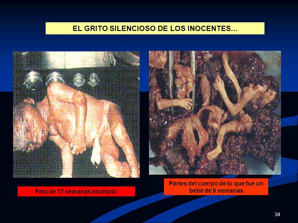 EL GRITO SILENCIOSO DE LOS INOCENTES...