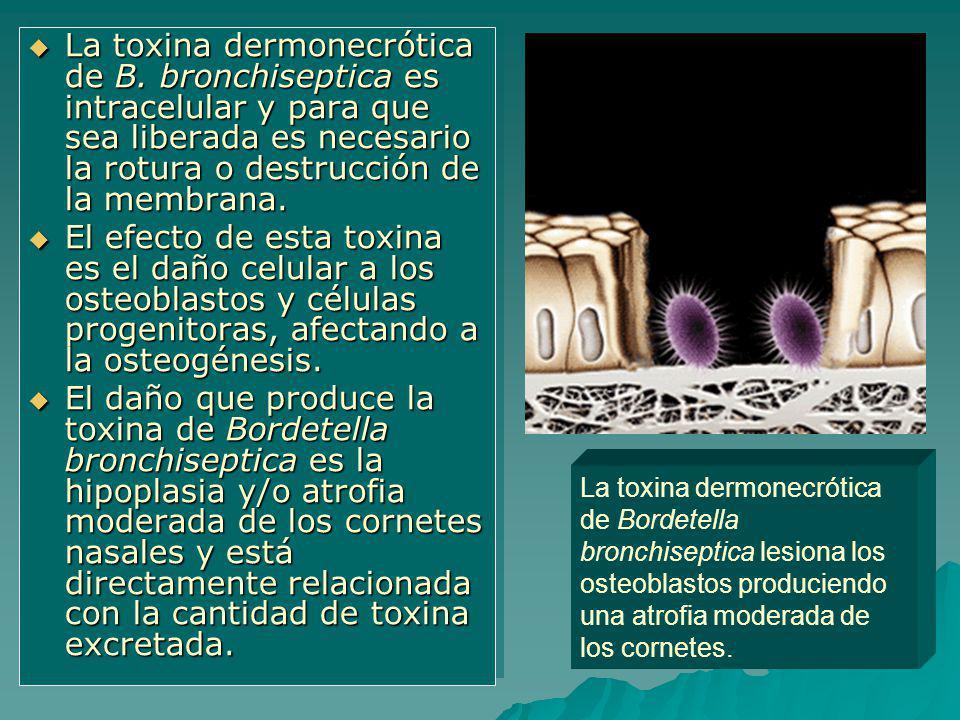 La toxina dermonecrótica de B