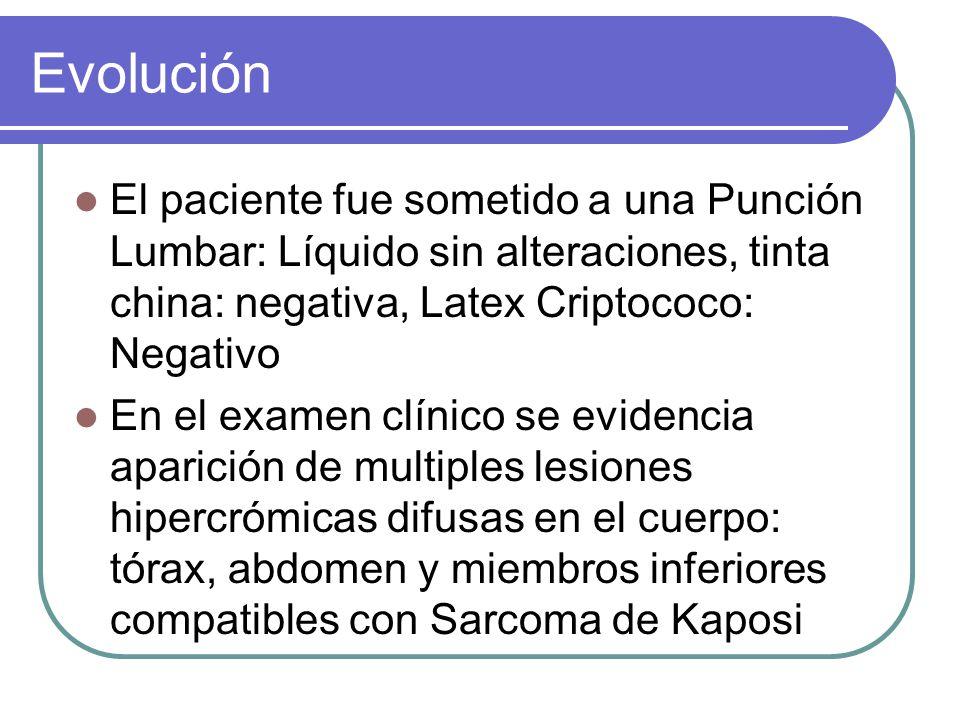 Evolución El paciente fue sometido a una Punción Lumbar: Líquido sin alteraciones, tinta china: negativa, Latex Criptococo: Negativo.