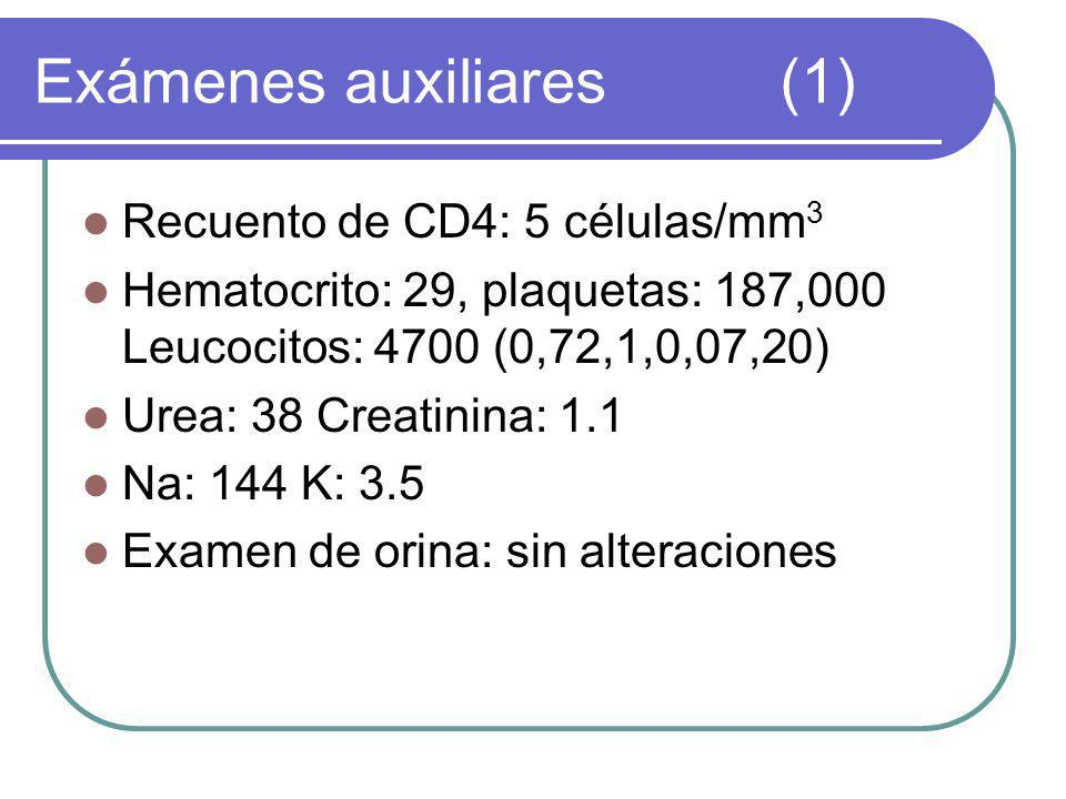 Exámenes auxiliares (1)