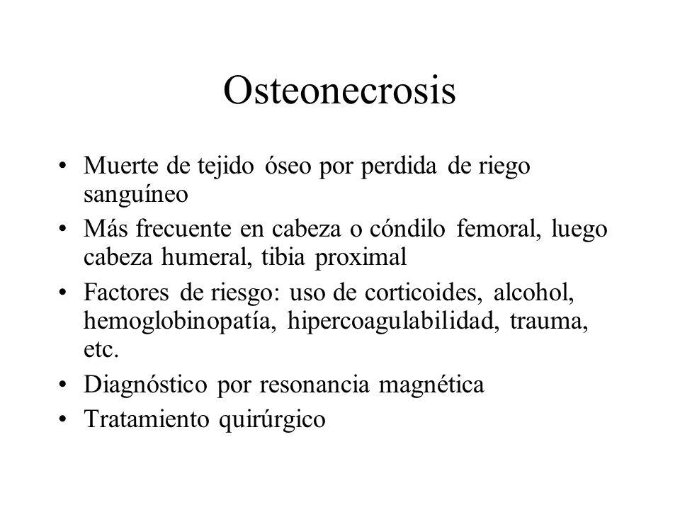 Osteonecrosis Muerte de tejido óseo por perdida de riego sanguíneo