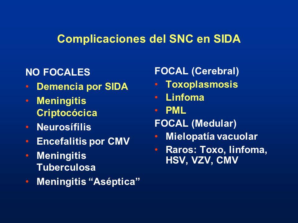 Complicaciones del SNC en SIDA