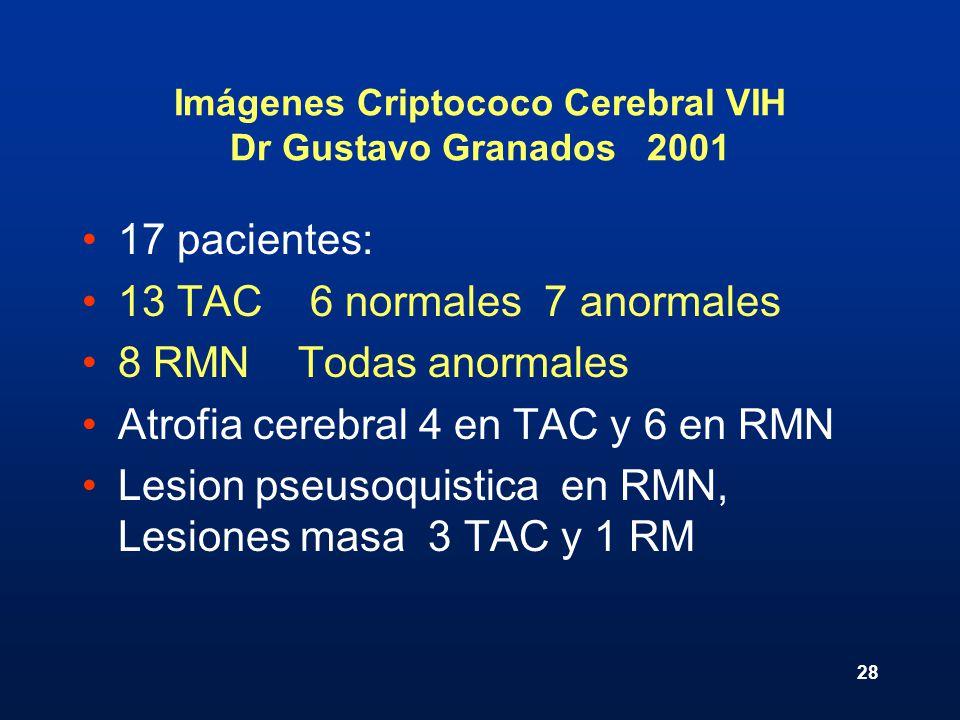 Imágenes Criptococo Cerebral VIH Dr Gustavo Granados 2001
