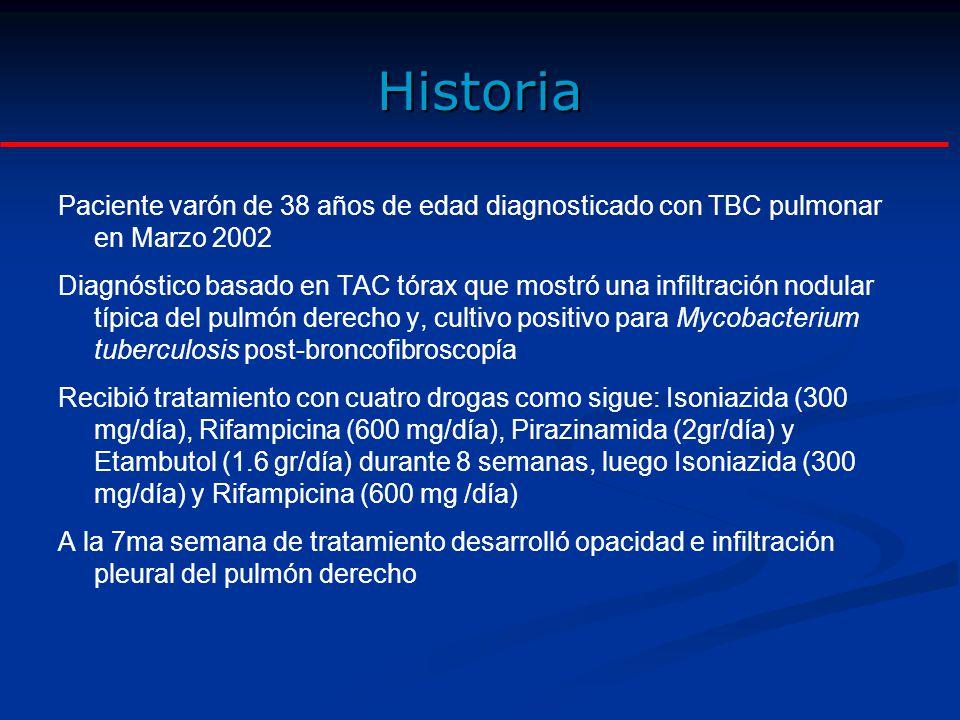 Historia Paciente varón de 38 años de edad diagnosticado con TBC pulmonar en Marzo 2002.