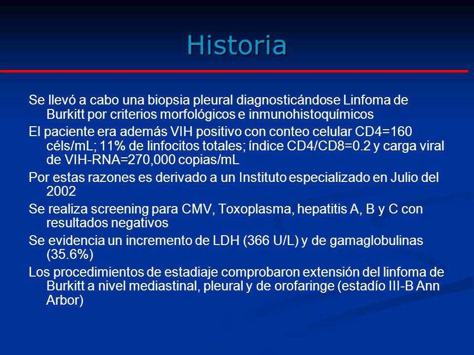 Historia Se llevó a cabo una biopsia pleural diagnosticándose Linfoma de Burkitt por criterios morfológicos e inmunohistoquímicos.