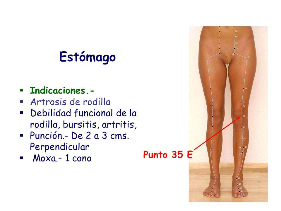 Estómago Indicaciones.- Artrosis de rodilla