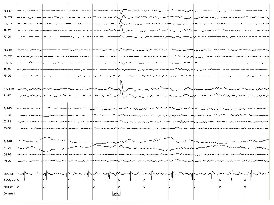 EEG Slide 99-10-31/ROUTINE
