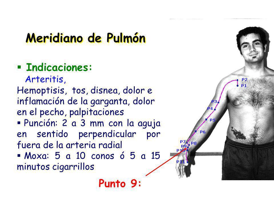 Meridiano de Pulmón Indicaciones: Punto 9: Arteritis,