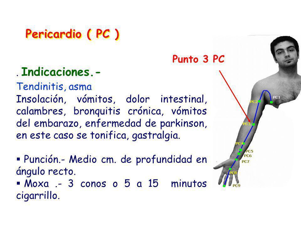 Pericardio ( PC ) Punto 3 PC . Indicaciones.- Tendinitis, asma