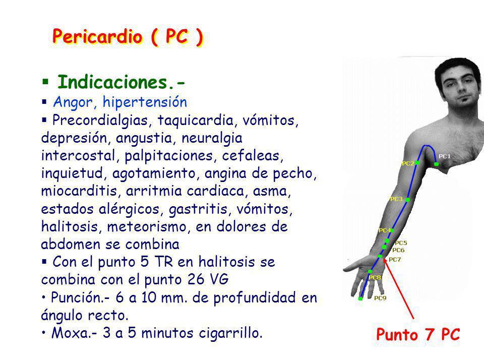 Pericardio ( PC ) Indicaciones.- Punto 7 PC Angor, hipertensión