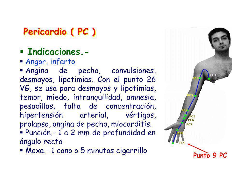 Pericardio ( PC ) Indicaciones.- Angor, infarto