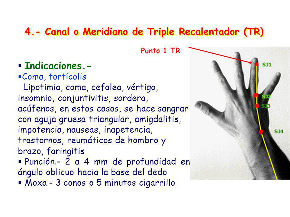 4.- Canal o Meridiano de Triple Recalentador (TR)