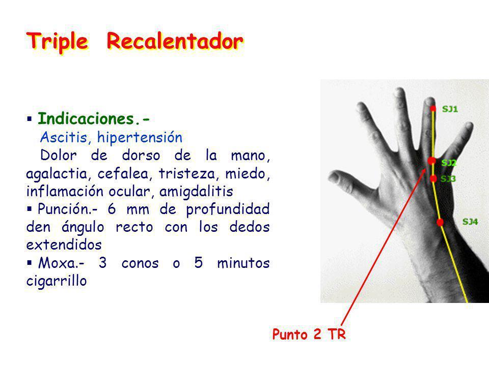 Triple Recalentador Indicaciones.- Ascitis, hipertensión