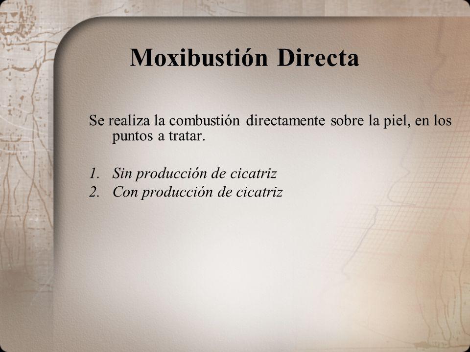 Moxibustión Directa Se realiza la combustión directamente sobre la piel, en los puntos a tratar. Sin producción de cicatriz.