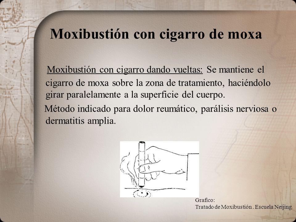 Moxibustión con cigarro de moxa