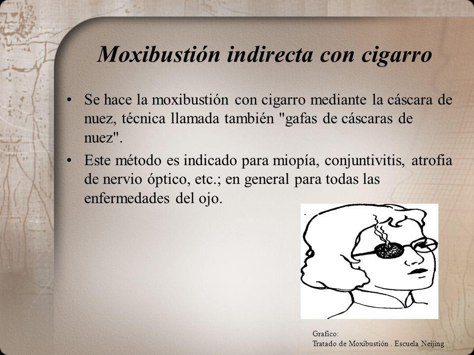 Moxibustión indirecta con cigarro
