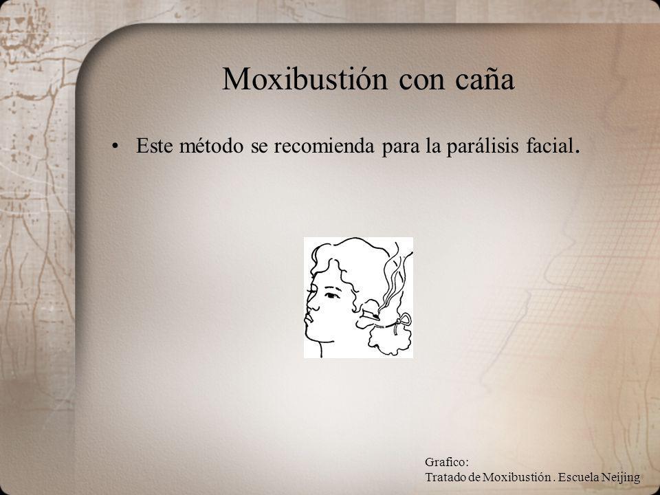 Moxibustión con caña Este método se recomienda para la parálisis facial.