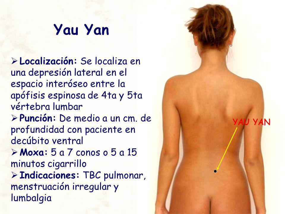Yau Yan Localización: Se localiza en una depresión lateral en el espacio interóseo entre la apófisis espinosa de 4ta y 5ta vértebra lumbar.