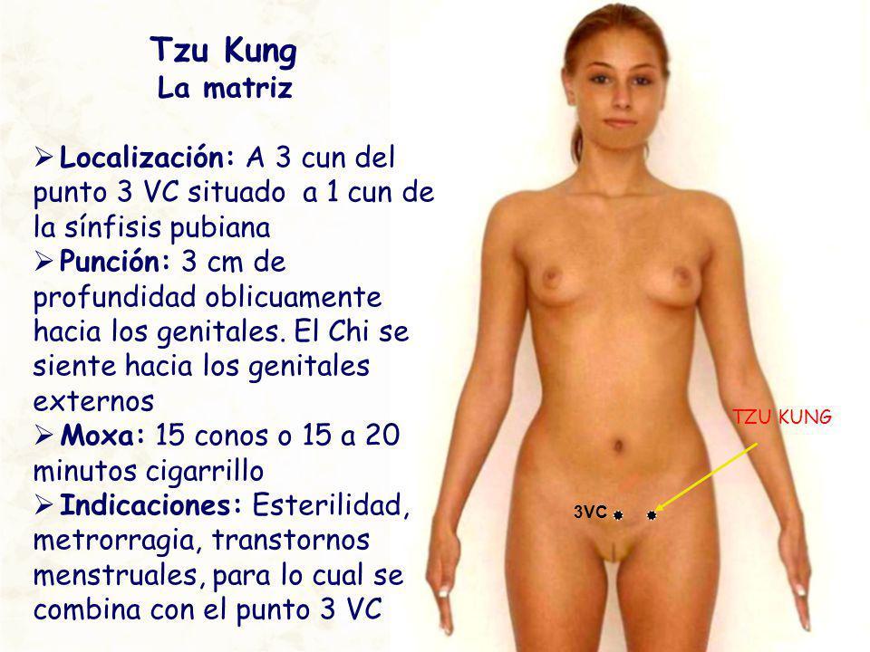 Tzu Kung La matriz. Localización: A 3 cun del punto 3 VC situado a 1 cun de la sínfisis pubiana.