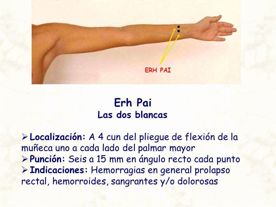 ERH PAI Erh Pai. Las dos blancas. Localización: A 4 cun del pliegue de flexión de la muñeca uno a cada lado del palmar mayor.